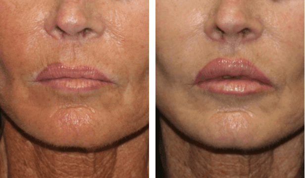 A before and after image of a woman that underwent a lip augmentation